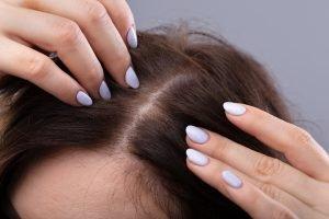 Tipps gegen dünne Haare – so wird die Haarpracht voller